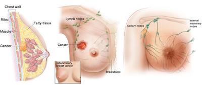 Resiko dan Gejala Kanker Payudara