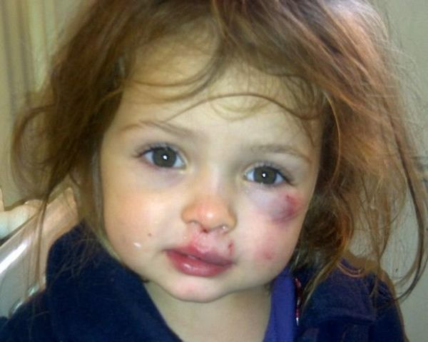 Little 4 Year Old Girls That Is Abused