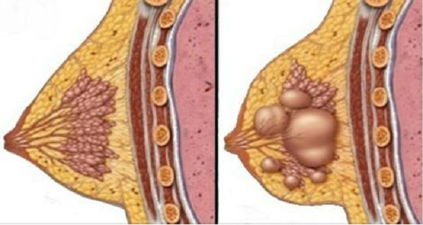 Say Goodbye To Breast Cysts Using This Home Natural Medicines