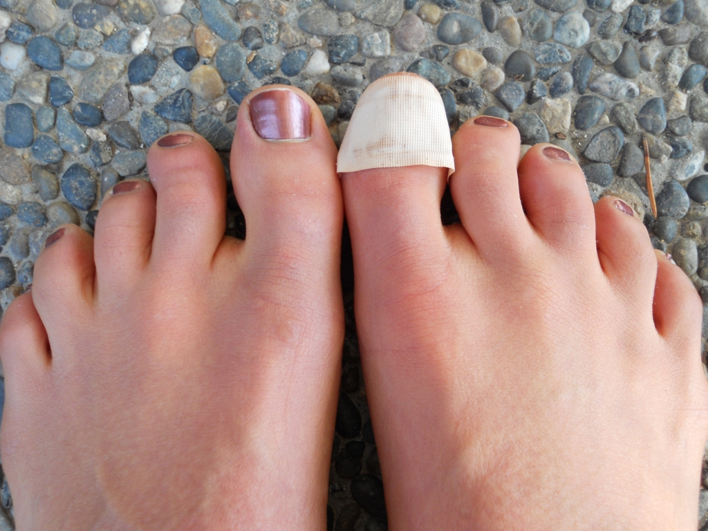 Image result for toenail falling off