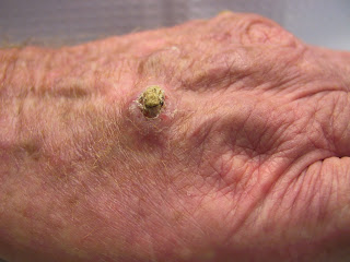 Radiotherapeutic Bandage As Treatment For Skin Cancer