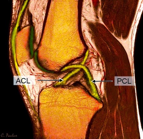 Sagittal Color Knee MRI Image of the ACL and PCL Ligaments