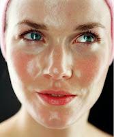 Was sind die häufigsten Probleme einer fettigen Haut?