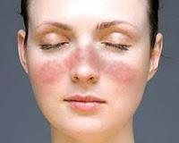 Pengobatan Tradisional Lupus
