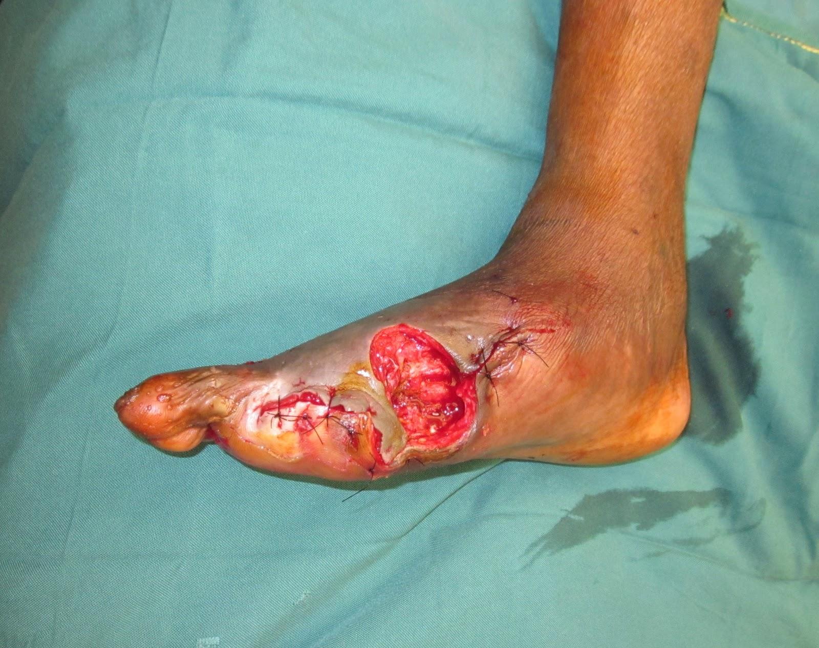 Diabetic foot wet gangrene extending in 1st web space to dorsum foot