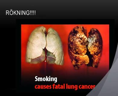 vätska i lungorna cancer