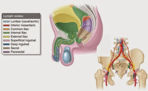 Carcinoma Of The Prostate Gland Dipnb Clinical Tutorials General