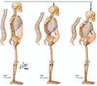 Nanda Nursing Diagnosis for Osteoporosis