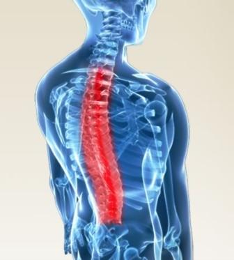 Kemik Erimesine Bağli Ağrilar