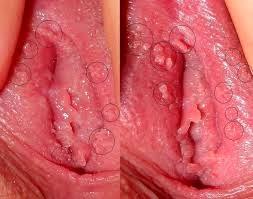 Penyakit Sipilis Menular Ke Remaja