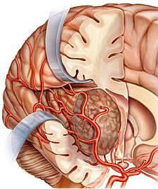 brain tumor glioblastoma Tumor Otak