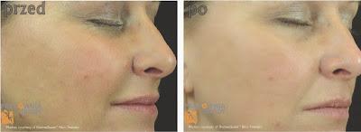 wygładzanie zmarszczek bez botoksu - kwasy medyczne i dermatologiczne