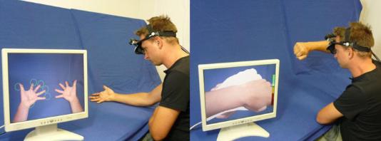 写真:拡張現実ミラーセラピー