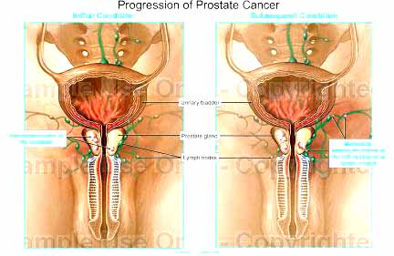stage 4 prostate cancer prognosis