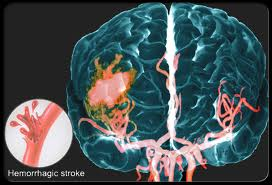 hemorrhagic stroke risk factors