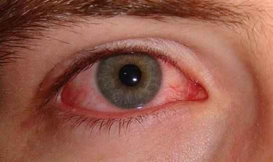 Penyebab Mata Merah Seperti Darah Beku
