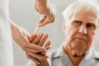 Studiosi australiani hanno scoperto un  legame tra i livelli di ferro nel sangue e il morbo di Alzheimer