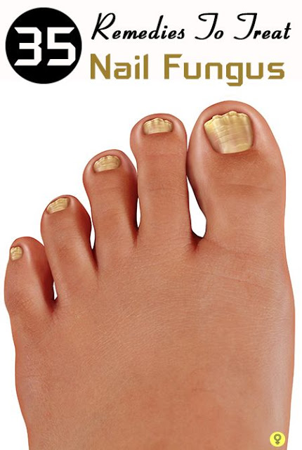 Top 37 Home Remedies To Treat Nail Fungus