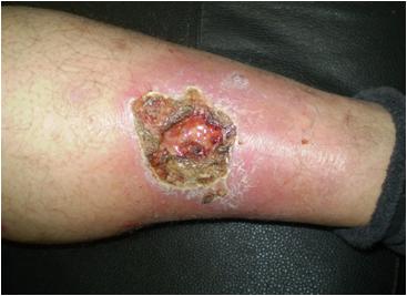 Los ejercicios de varikoza en los pies en las estampas