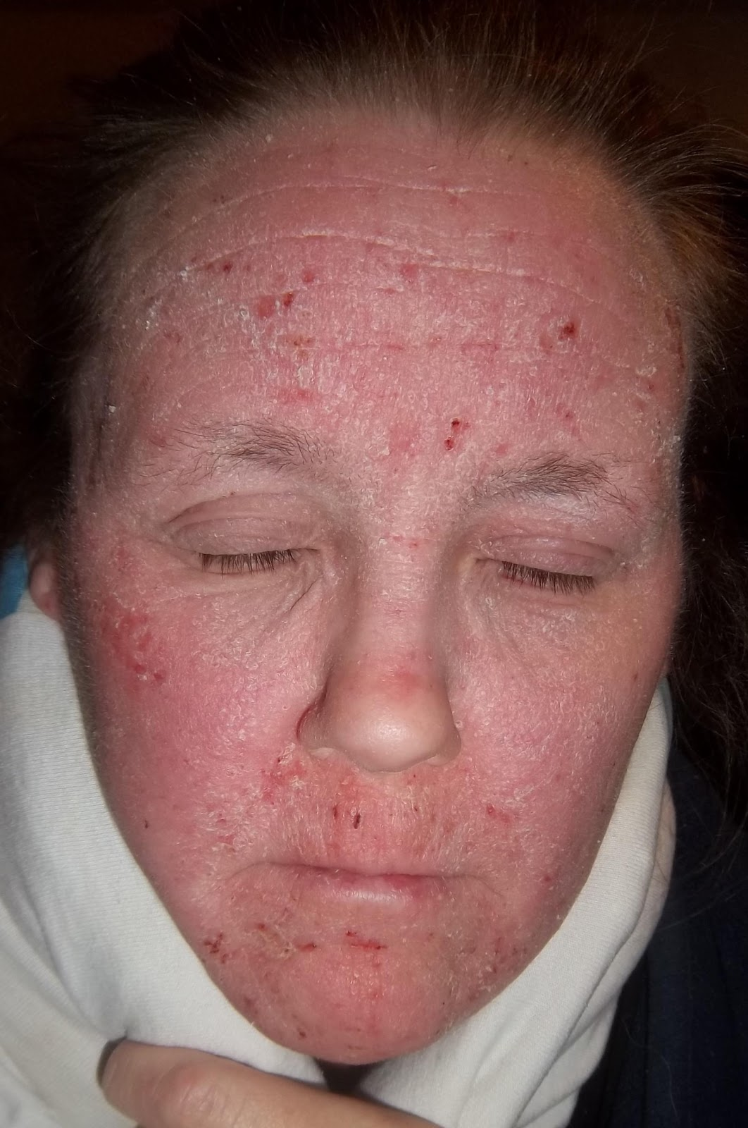 steroid withdrawal red skin syndrome