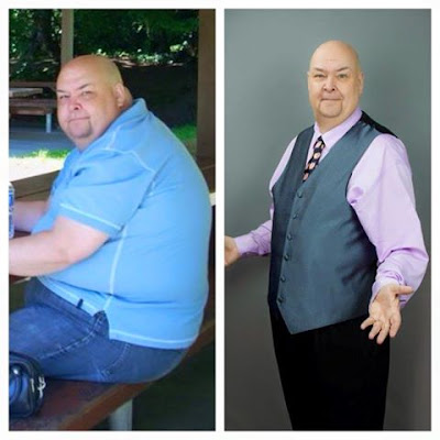 over-eating, neale bacon, losing weight