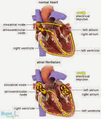 The Big Risk Factors and Causes of Atrial Fibrillation