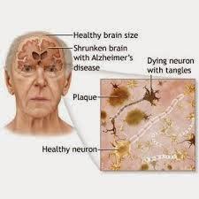 Obat Untuk Penyakit Alzheimer
