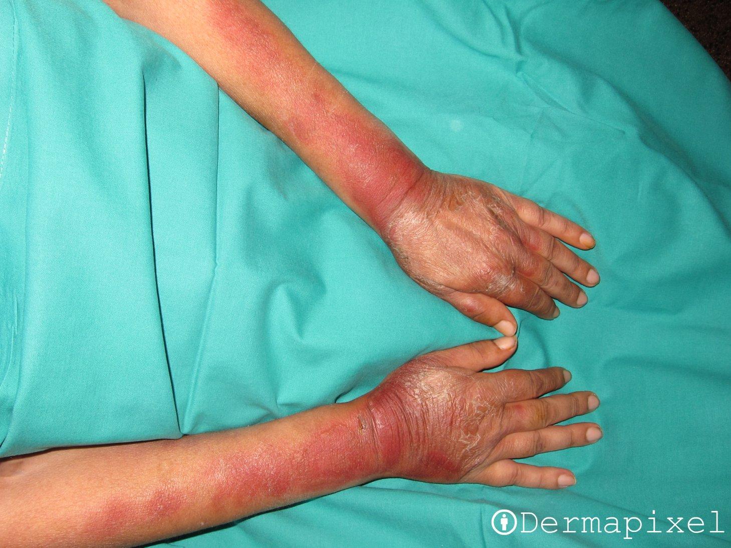 image Interna de medicina dismuladamnete me toco la verga