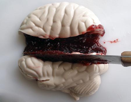 Brain Jello5