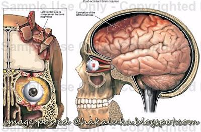 otak rosak