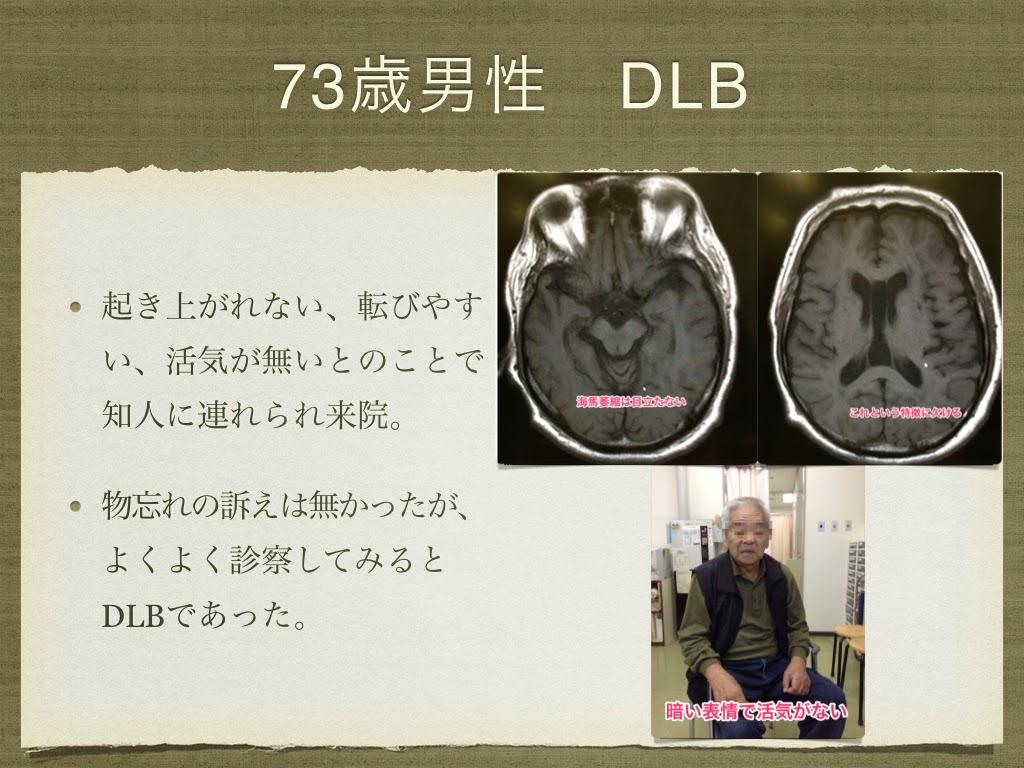 73歳男性 レビー小体型認知症改善例