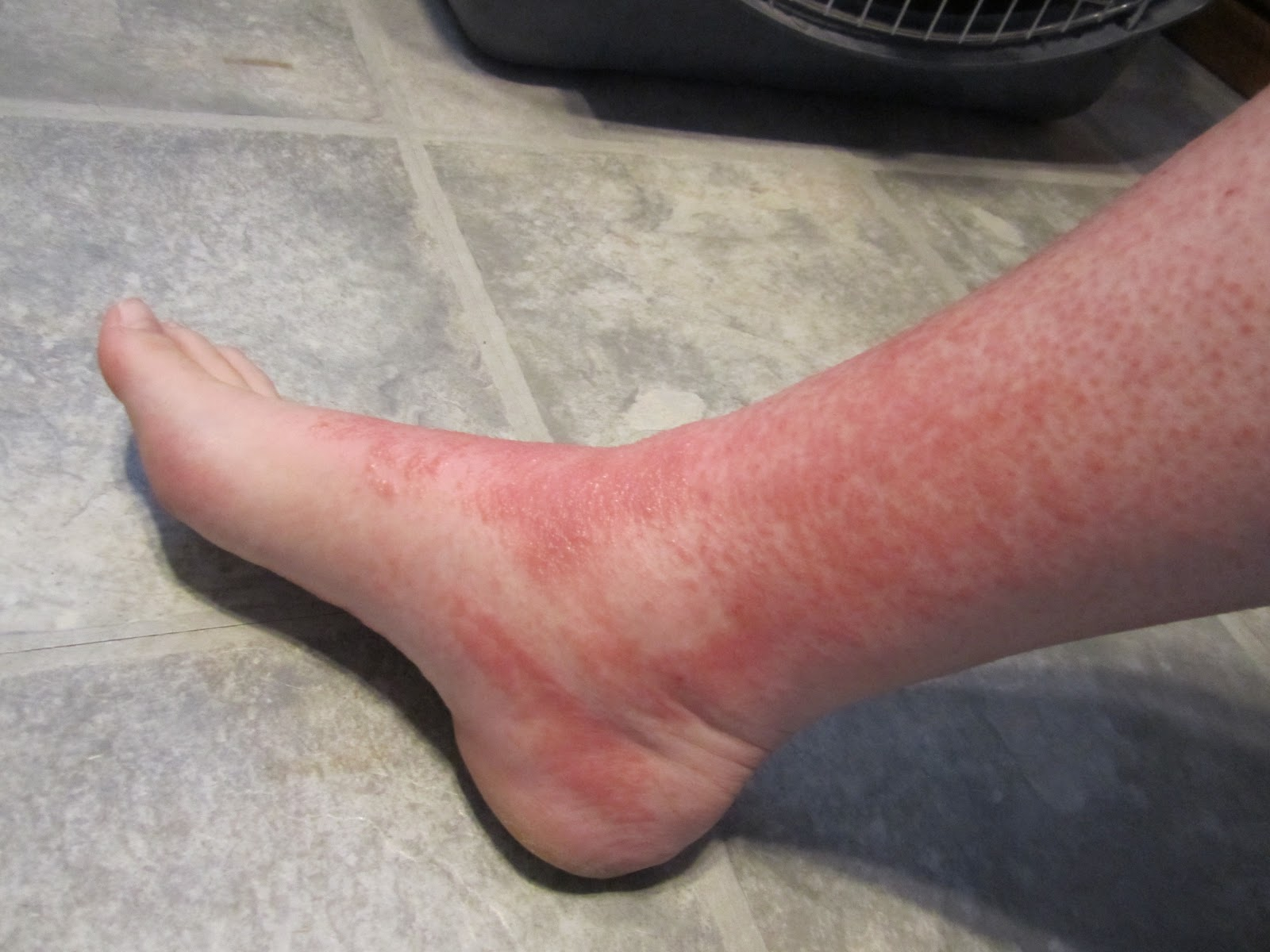 red bumps on ankles