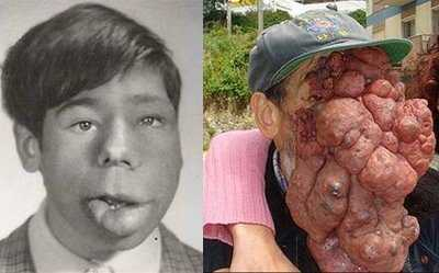 most horrible weirdest strangest diseases haemangioma man with no face
