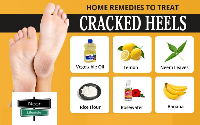 treatment for dry cracked feet