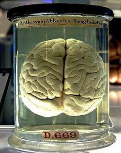 Sala dos Cérebros Brain_in_a_jar
