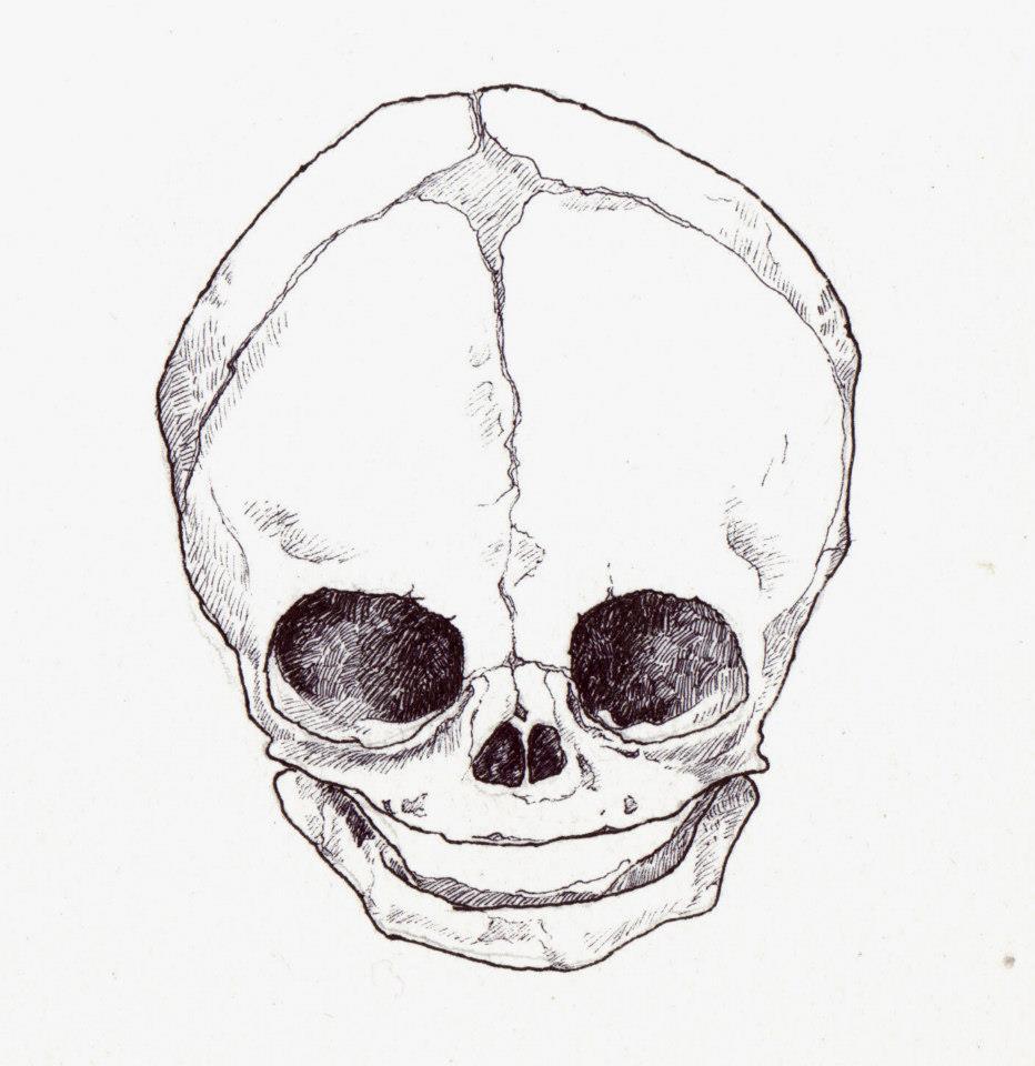 Glass Eyes Babies Skulls