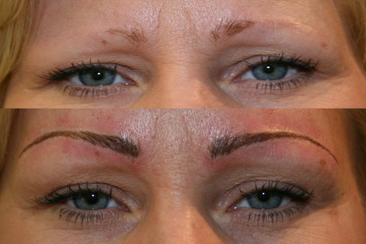 Semi Permanent Makeup Correction And Removal I Heart Cosmetics