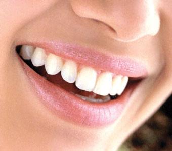 dente%20lindo.jpg