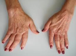 apoio da artrite