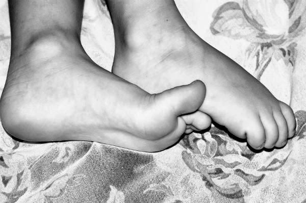 torticolis la picior?