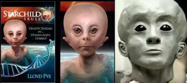 Πώς έμοιαζε το Starchild όσο ήταν ζωντανό;