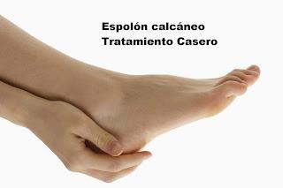 Espolón calcáneo Tratamiento Casero