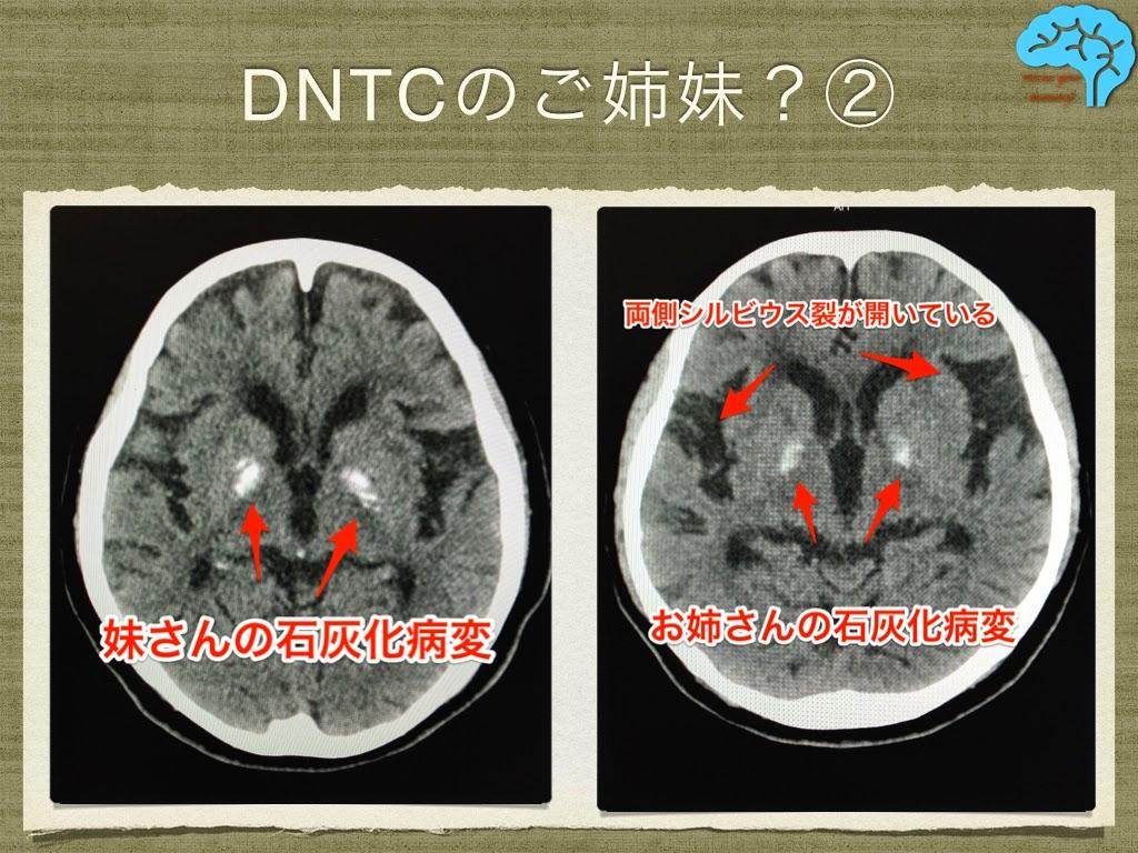 DNTC Fahr ファール病の頭部CT