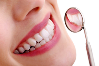 cara-alami-menghilangkan-karang-gigi