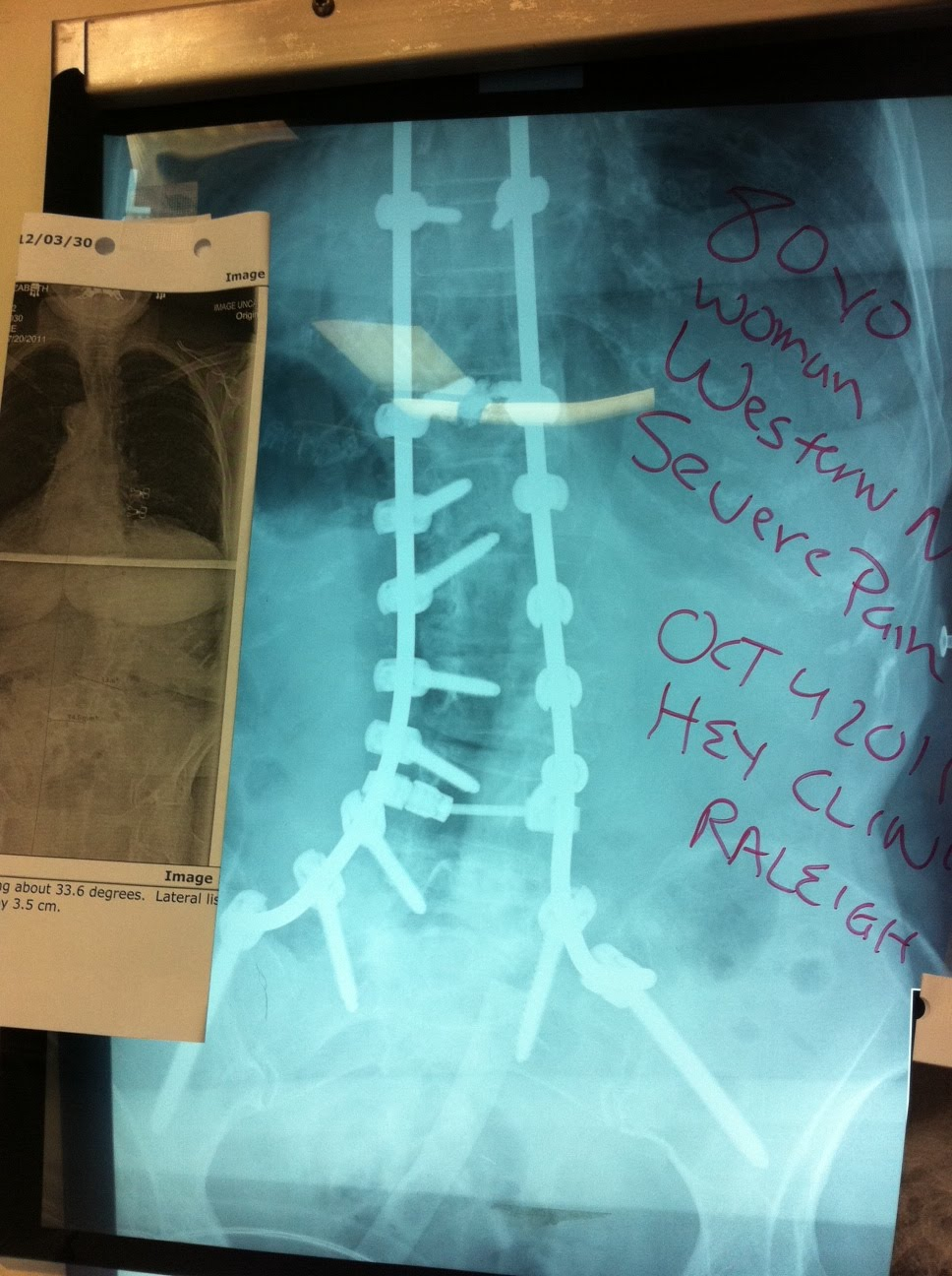 Dr. Lloyd Hey's Blog: Hey Clinic for Scoliosis and Spine ...