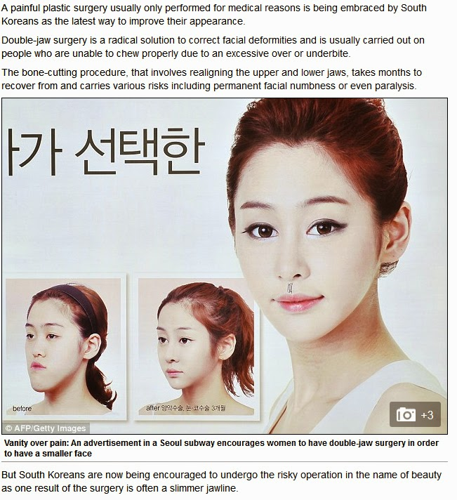 http://www.dailymail.co.uk/femail/article-2332785/Dangerous-double-jaw-surgery-rise-South-Korea-women-encouraged-face-risks-bone-cutting-procedure-beauty.html
