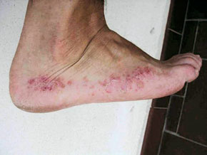 infection du pied