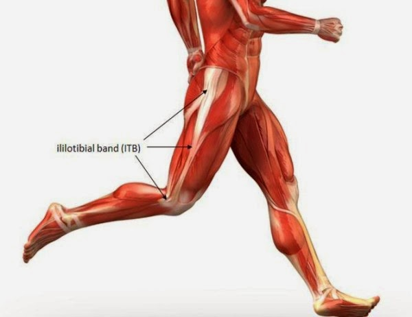Kinebioactiva: Runner knee o rodilla del corredor, sindrome de la ...