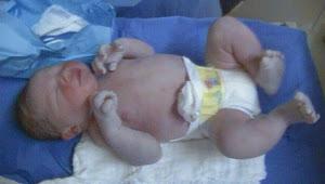 Pietro nasceu dia 28/08 de cesárea necessária...
