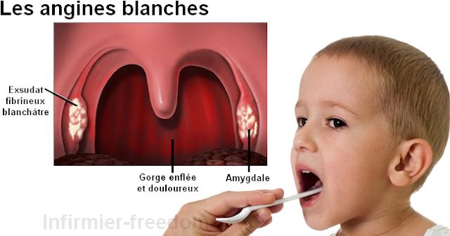 Signes et symptômes angine streptococcique